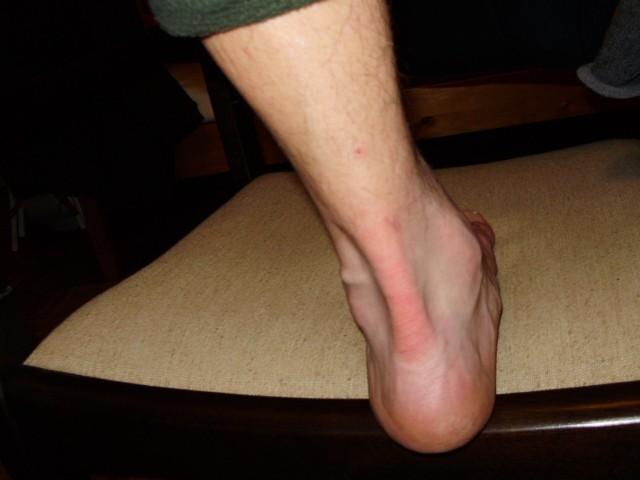 glükózamin-kondroitin szuper formula receptjei hogyan lehet kezelni a lábak és ízületek fájdalmait